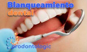 comprar productos blanqueamiento dental