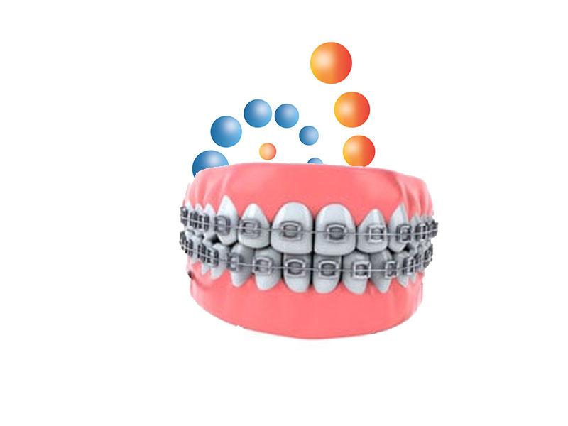 Productos de ortodoncia distribuidor nacional dental